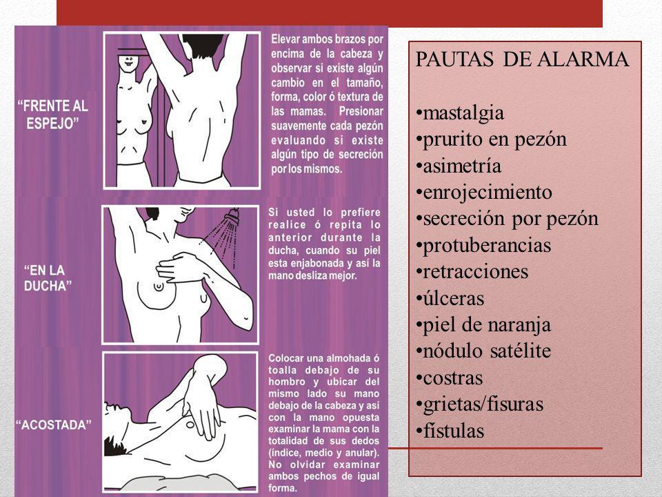 PAUTAS DE ALARMA mastalgia prurito en pezón asimetría enrojecimiento secreción por pezón protuberancias retracciones úlceras piel de naranja nódulo sa