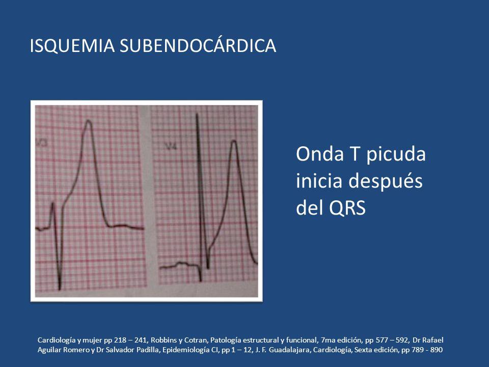 ISQUEMIA SUBENDOCÁRDICA Onda T picuda inicia después del QRS Cardiología y mujer pp 218 – 241, Robbins y Cotran, Patología estructural y funcional, 7m