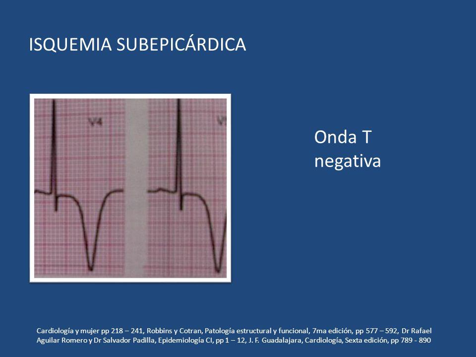ISQUEMIA SUBEPICÁRDICA Onda T negativa Cardiología y mujer pp 218 – 241, Robbins y Cotran, Patología estructural y funcional, 7ma edición, pp 577 – 59