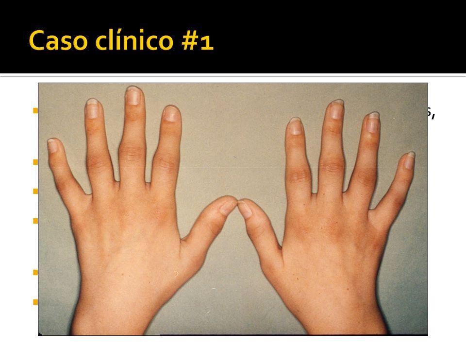 Mujer de 33 años. 2 meses de artralgias en muñecas, codos, MCF, IFP, rodillas Fatiga, rigidez matutina de 30 minutos AP: HTA, tabaquismo EF: Artritis