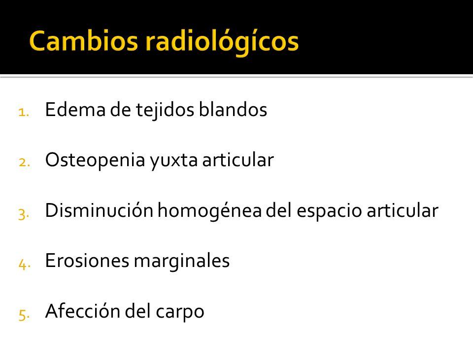 1. Edema de tejidos blandos 2. Osteopenia yuxta articular 3. Disminución homogénea del espacio articular 4. Erosiones marginales 5. Afección del carpo
