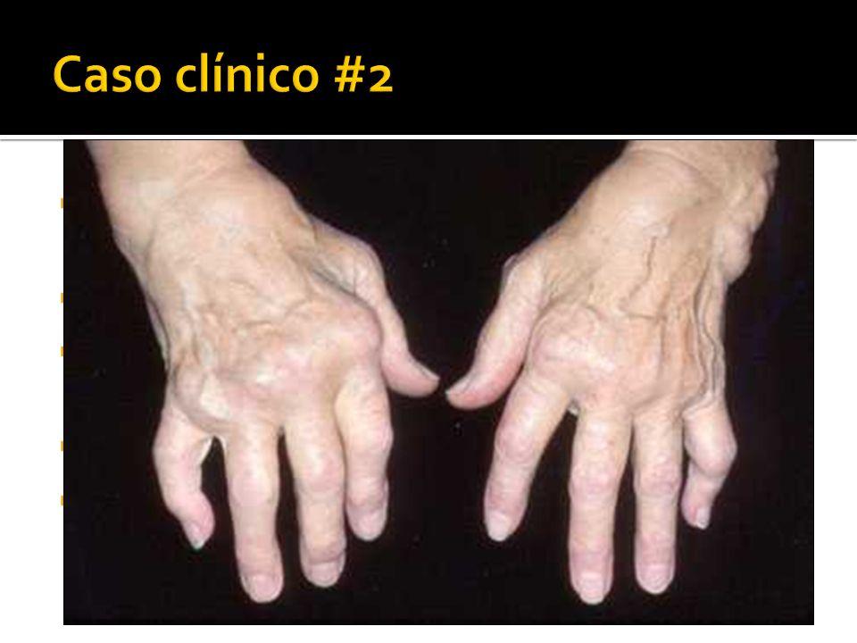 Mujer de 50 años. 5 años de artralgias en manos, codos, rodillas, pies Rigidez matutina de 2 horas, limitación funcional EF: Artritis de muñecas, MCF