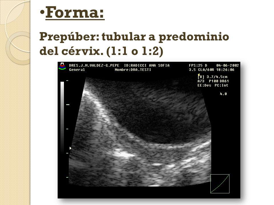 Forma: Prepúber: tubular a predominio del cérvix. (1:1 o 1:2)