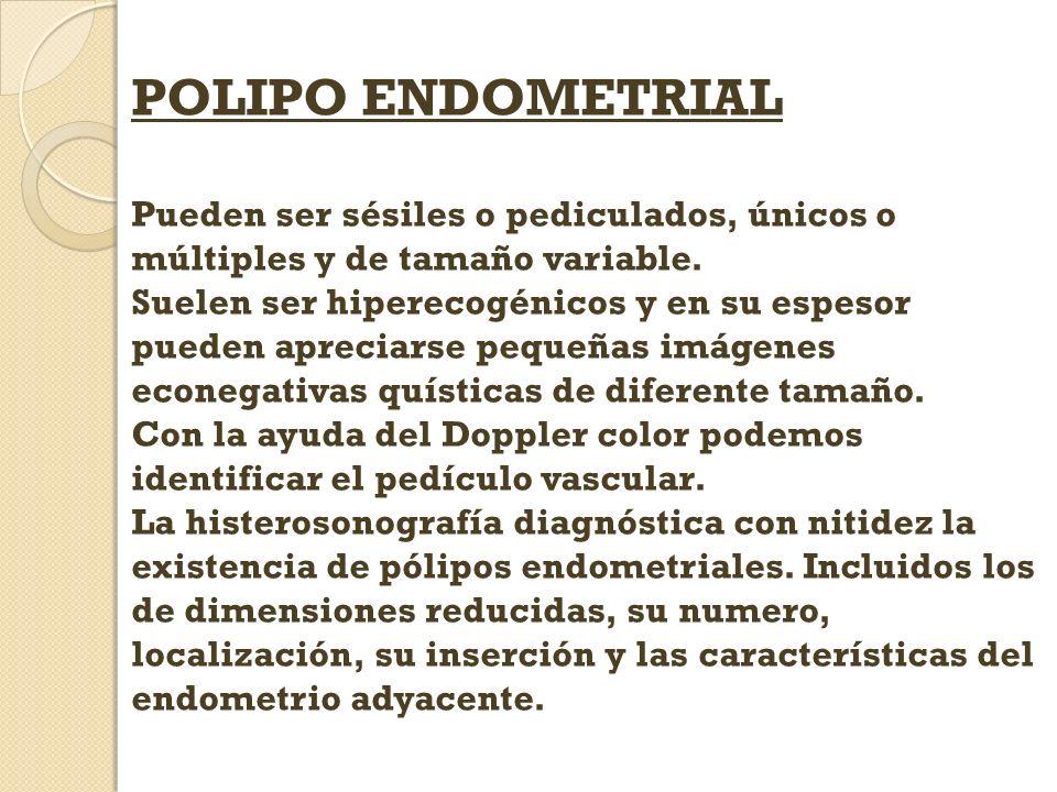 POLIPO ENDOMETRIAL Pueden ser sésiles o pediculados, únicos o múltiples y de tamaño variable. Suelen ser hiperecogénicos y en su espesor pueden apreci