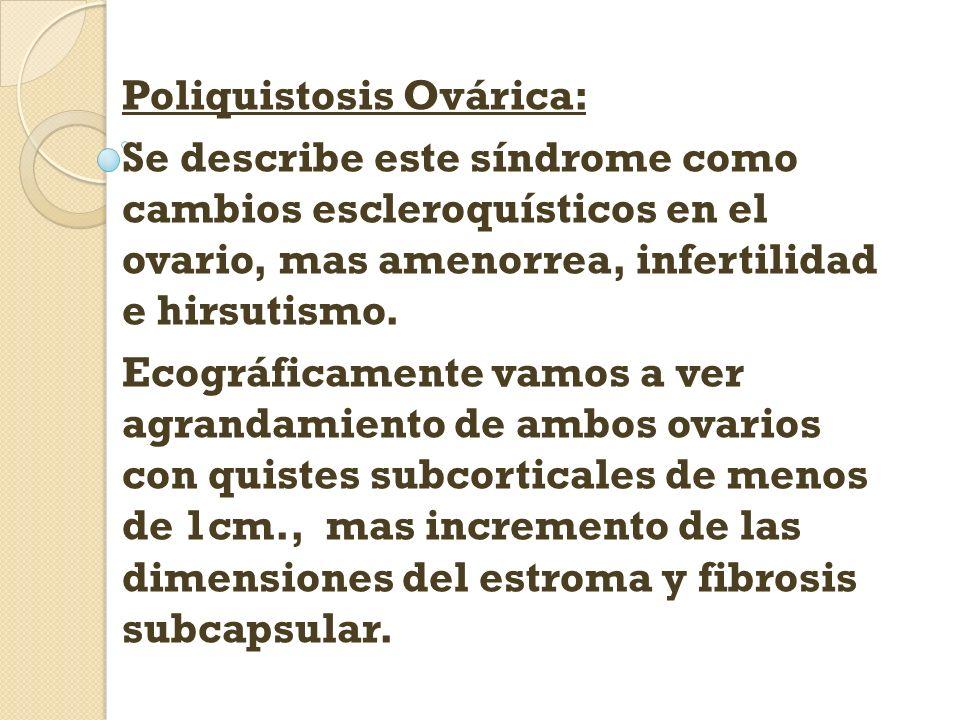 Poliquistosis Ovárica: Se describe este síndrome como cambios escleroquísticos en el ovario, mas amenorrea, infertilidad e hirsutismo. Ecográficamente