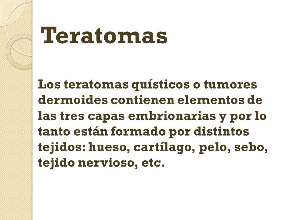 Teratomas Los teratomas quísticos o tumores dermoides contienen elementos de las tres capas embrionarias y por lo tanto están formado por distintos te