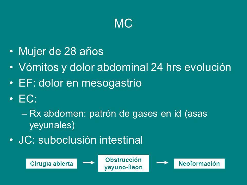 MC Mujer de 28 años Vómitos y dolor abdominal 24 hrs evolución EF: dolor en mesogastrio EC: –Rx abdomen: patrón de gases en id (asas yeyunales) JC: su