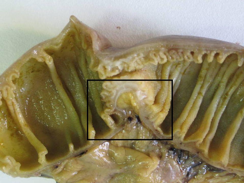 Tumor miofibroblástico inflamatorio DIAGNOSTICO DIFERENCIAL cKITVIMACT DESM pS100 CD34 B-catALK GIST +++ ++-/+++-- LEIOMIOMA -+++++ --/+- FIBROMATOSIS -/++++ --+- TCFDENDRÍT.