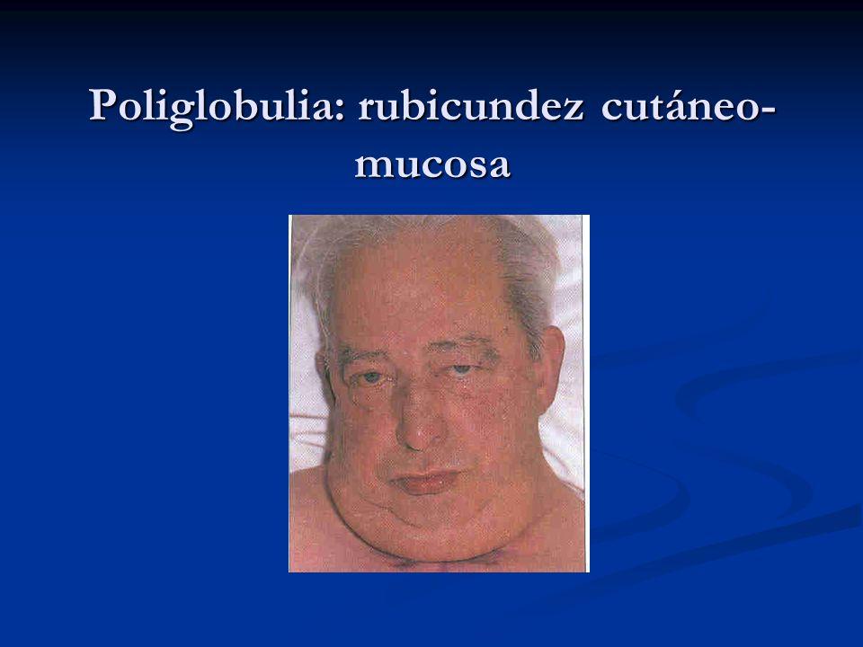 Poliglobulia: rubicundez cutáneo- mucosa