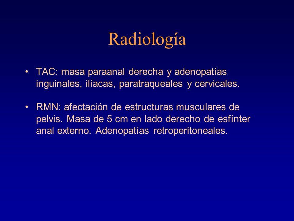 Radiología TAC: masa paraanal derecha y adenopatías inguinales, ilíacas, paratraqueales y cervicales. RMN: afectación de estructuras musculares de pel