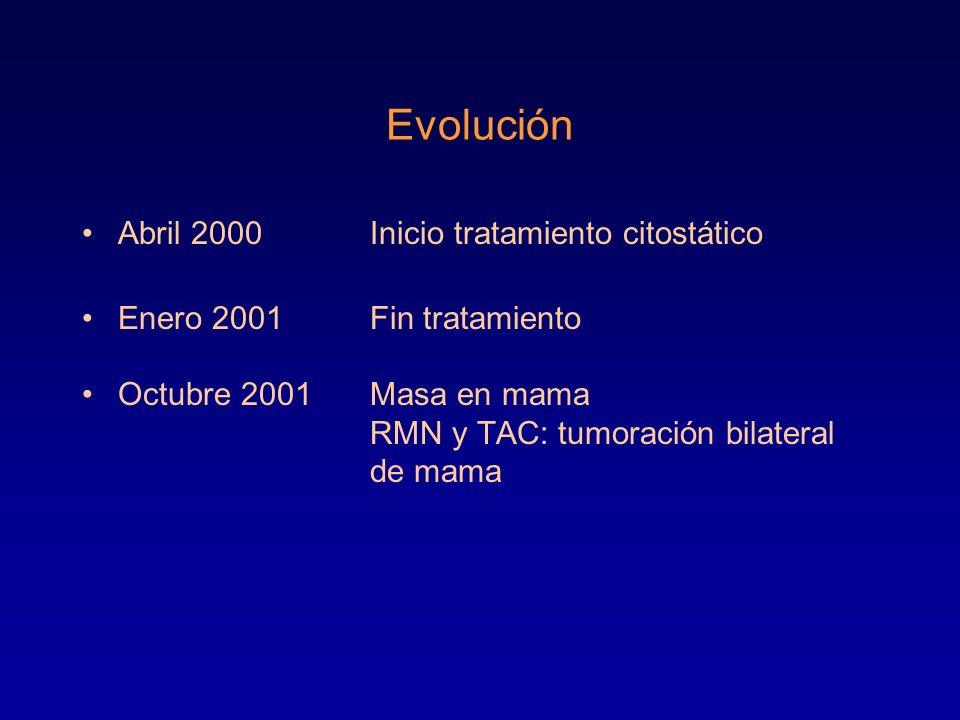 Evolución Abril 2000Inicio tratamiento citostático Enero 2001Fin tratamiento Octubre 2001Masa en mama RMN y TAC: tumoración bilateral de mama