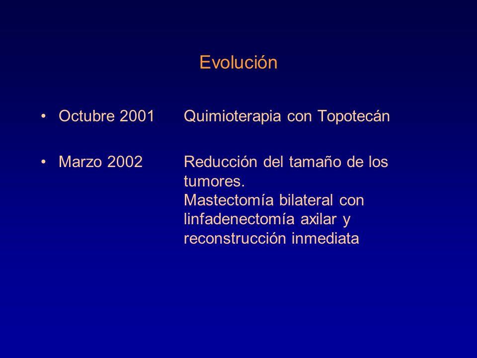Evolución Octubre 2001Quimioterapia con Topotecán Marzo 2002Reducción del tamaño de los tumores. Mastectomía bilateral con linfadenectomía axilar y re