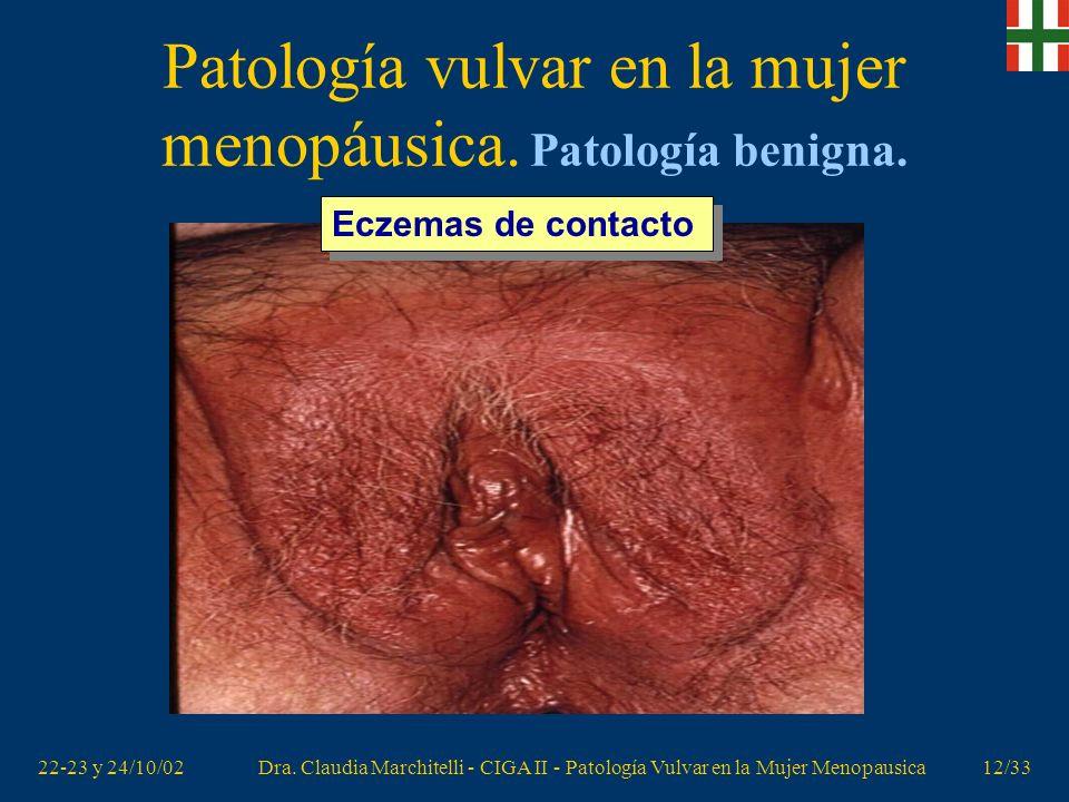 22-23 y 24/10/02Dra. Claudia Marchitelli - CIGA II - Patología Vulvar en la Mujer Menopausica11/33 Patología vulvar en la mujer menopáusica. Patología