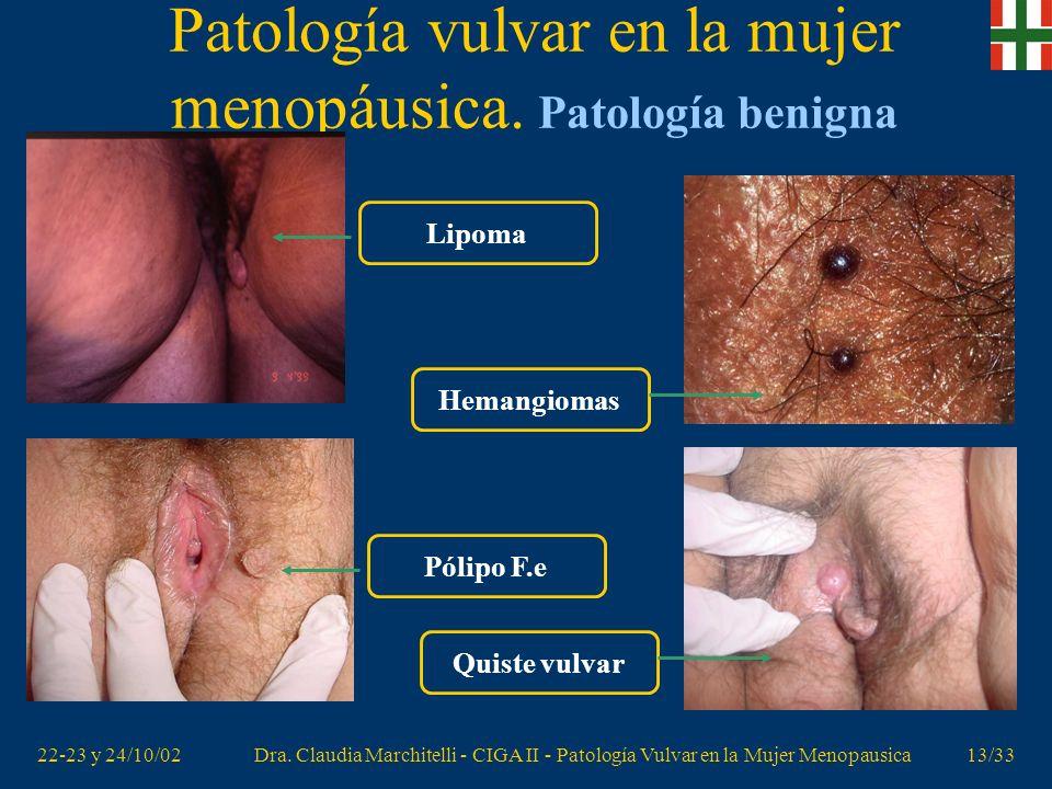22-23 y 24/10/02Dra. Claudia Marchitelli - CIGA II - Patología Vulvar en la Mujer Menopausica12/33 Patología vulvar en la mujer menopáusica. Patología