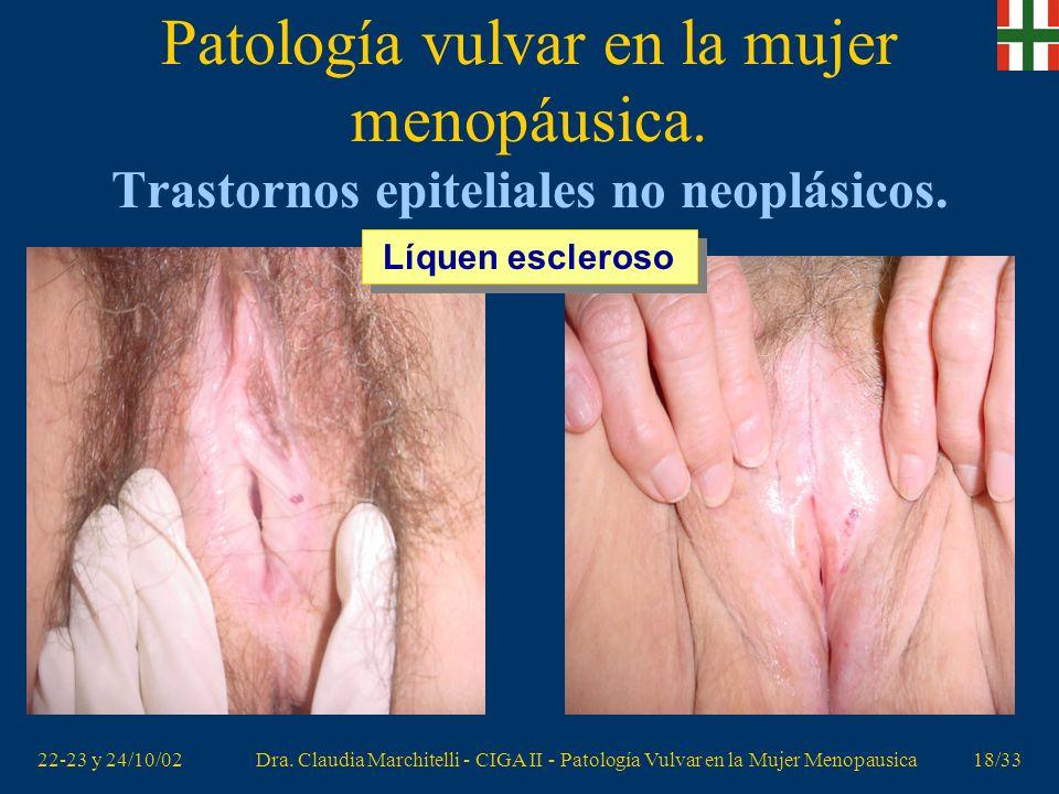 22-23 y 24/10/02Dra. Claudia Marchitelli - CIGA II - Patología Vulvar en la Mujer Menopausica17/33 Patología vulvar en la mujer menopáusica. Trastorno