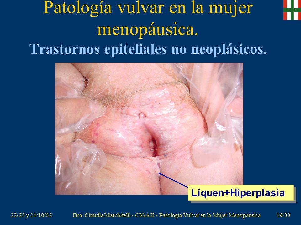 22-23 y 24/10/02Dra. Claudia Marchitelli - CIGA II - Patología Vulvar en la Mujer Menopausica18/33 Patología vulvar en la mujer menopáusica. Trastorno