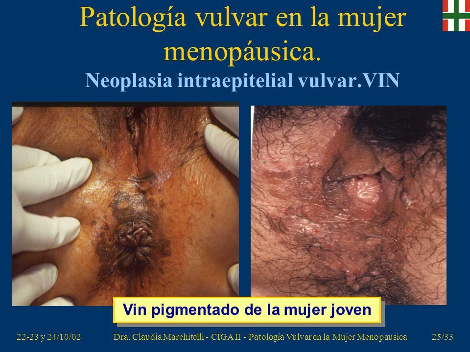 22-23 y 24/10/02Dra. Claudia Marchitelli - CIGA II - Patología Vulvar en la Mujer Menopausica24/33 Patología vulvar en la mujer menopáusica. Neoplasia