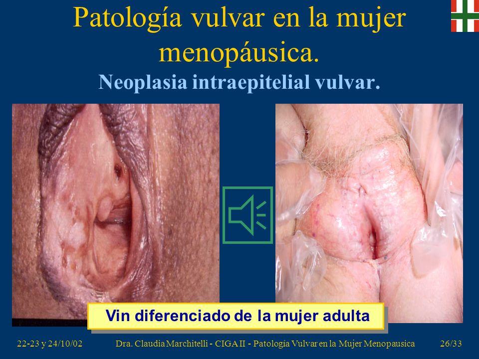 22-23 y 24/10/02Dra. Claudia Marchitelli - CIGA II - Patología Vulvar en la Mujer Menopausica25/33 Patología vulvar en la mujer menopáusica. Neoplasia