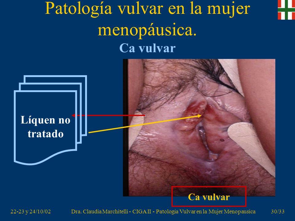 22-23 y 24/10/02Dra. Claudia Marchitelli - CIGA II - Patología Vulvar en la Mujer Menopausica29/33 Patología vulvar en la mujer menopáusica. Ca vulvar