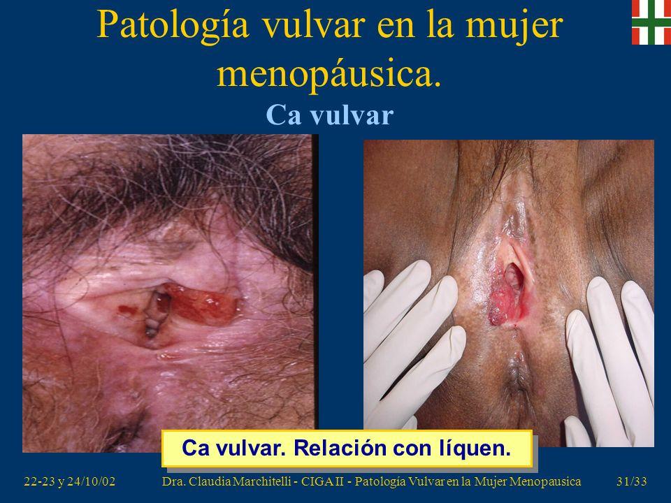 22-23 y 24/10/02Dra. Claudia Marchitelli - CIGA II - Patología Vulvar en la Mujer Menopausica30/33 Patología vulvar en la mujer menopáusica. Ca vulvar
