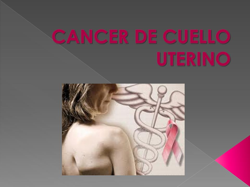 Es un cáncer que comienza en el cuello uterino, la parte inferior del útero (matriz) que se abre en la parte superior de la vagina.