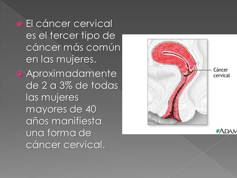 El cáncer cervical es el tercer tipo de cáncer más común en las mujeres. El cáncer cervical es el tercer tipo de cáncer más común en las mujeres. Apro