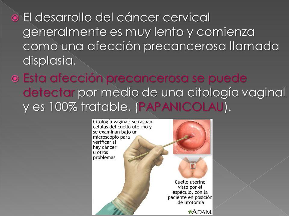 El desarrollo del cáncer cervical generalmente es muy lento y comienza como una afección precancerosa llamada displasia. El desarrollo del cáncer cerv