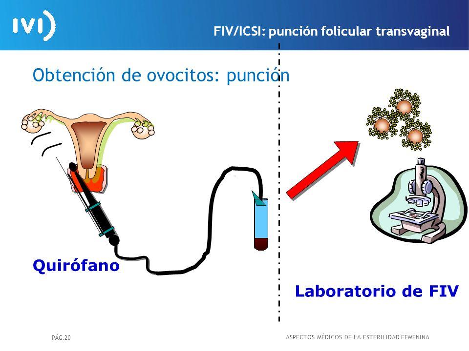 PÁG.20 Obtención de ovocitos: punción Laboratorio de FIV Quirófano ASPECTOS MÉDICOS DE LA ESTERILIDAD FEMENINA FIV/ICSI: punción folicular transvagina