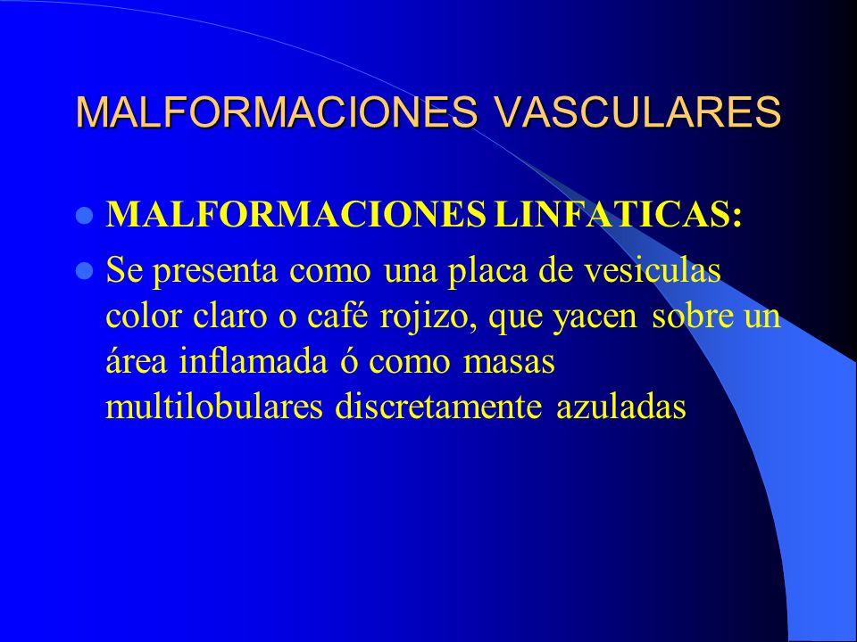 MALFORMACIONES VASCULARES MALFORMACIONES LINFATICAS: Se presenta como una placa de vesiculas color claro o café rojizo, que yacen sobre un área inflam
