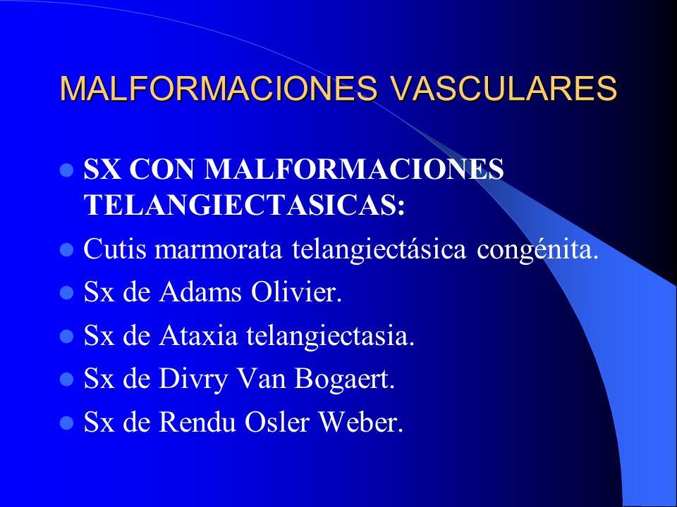 MALFORMACIONES VASCULARES SX CON MALFORMACIONES TELANGIECTASICAS: Cutis marmorata telangiectásica congénita. Sx de Adams Olivier. Sx de Ataxia telangi