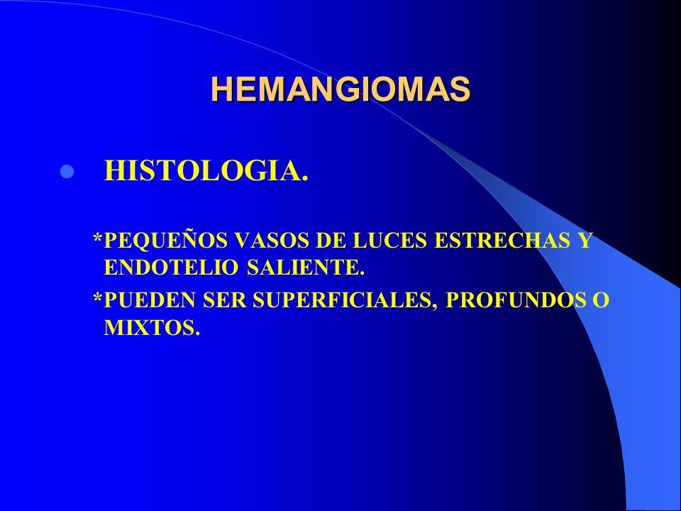 HEMANGIOMAS HISTOLOGIA. *PEQUEÑOS VASOS DE LUCES ESTRECHAS Y ENDOTELIO SALIENTE. *PUEDEN SER SUPERFICIALES, PROFUNDOS O MIXTOS.