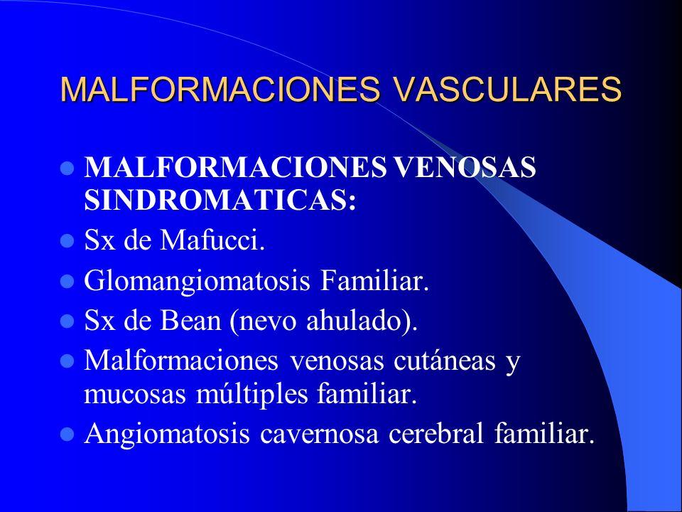 MALFORMACIONES VASCULARES MALFORMACIONES VENOSAS SINDROMATICAS: Sx de Mafucci. Glomangiomatosis Familiar. Sx de Bean (nevo ahulado). Malformaciones ve