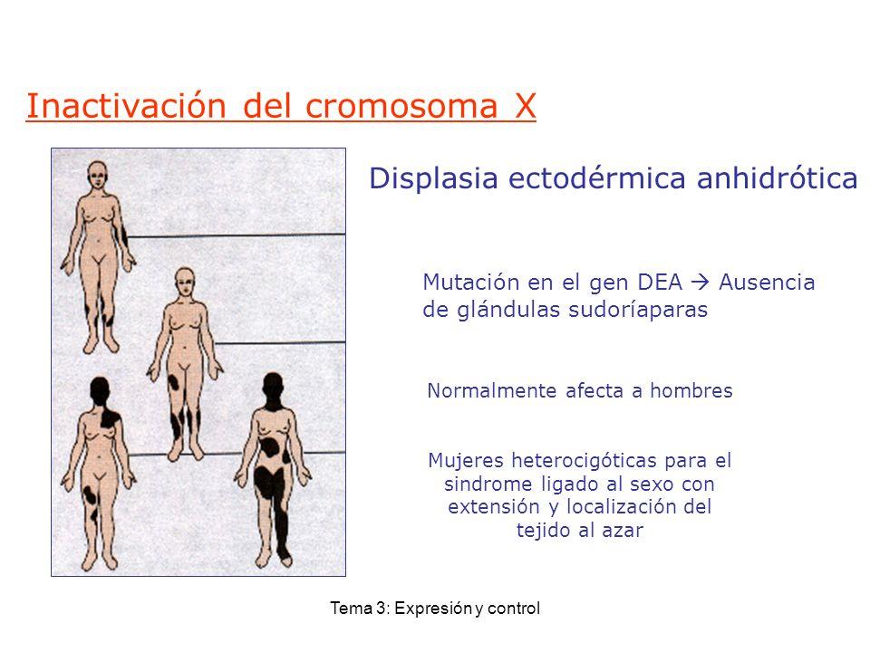 Tema 3: Expresión y control Displasia ectodérmica anhidrótica Normalmente afecta a hombres Mujeres heterocigóticas para el sindrome ligado al sexo con