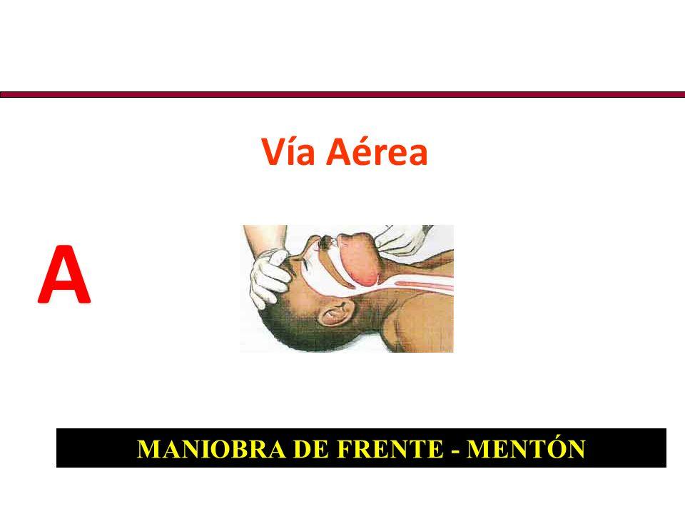 Vía Aérea A A MANIOBRA DE FRENTE - MENTÓN
