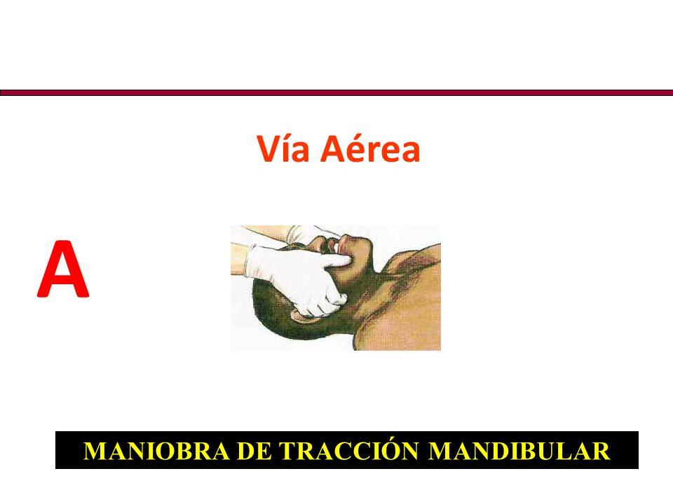 Vía Aérea A A MANIOBRA DE TRACCIÓN MANDIBULAR