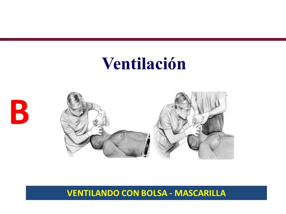 HEMLICH - LACTANTES 5 palmadas en la espalda, entre los omóplatos 5 compresiones con golpes secos en el tórax (rápidas)