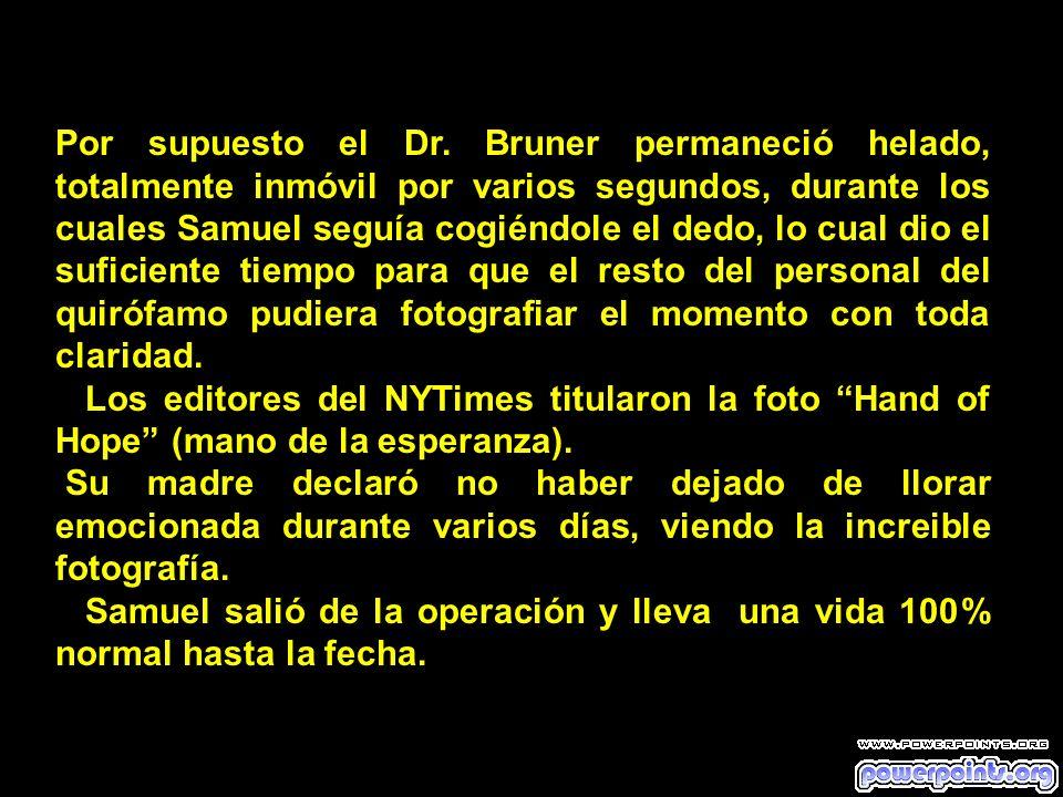 Por supuesto el Dr. Bruner permaneció helado, totalmente inmóvil por varios segundos, durante los cuales Samuel seguía cogiéndole el dedo, lo cual dio