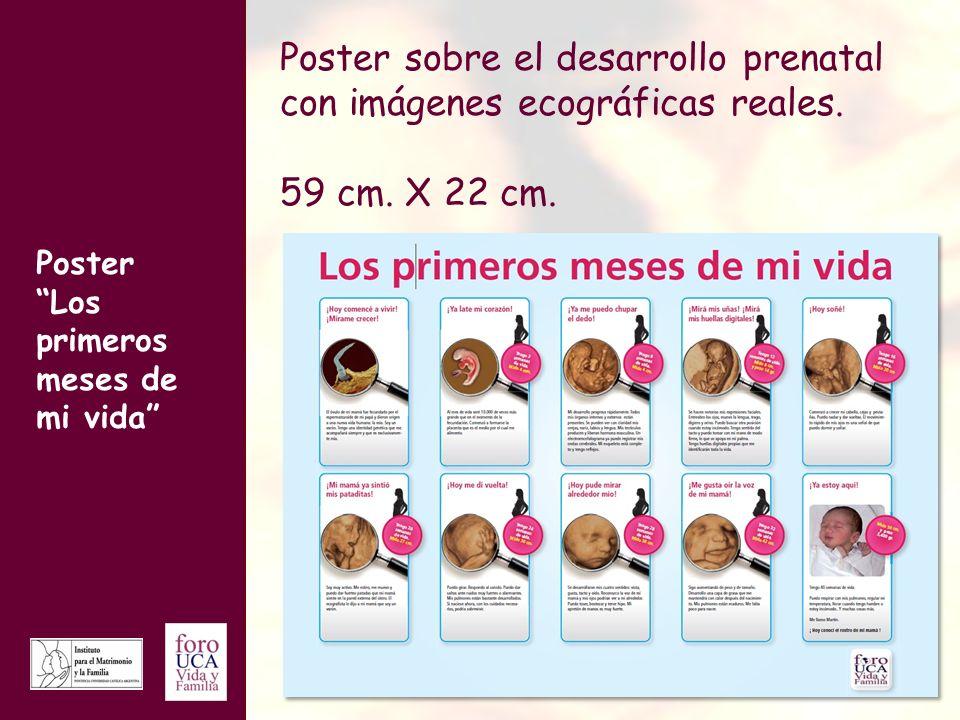 Poster Los primeros meses de mi vida Poster sobre el desarrollo prenatal con imágenes ecográficas reales. 59 cm. X 22 cm.