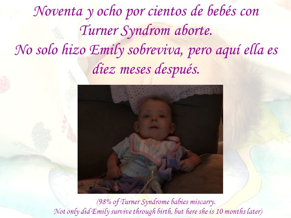 (98% of Turner Syndrome babies miscarry. Not only did Emily survive through birth, but here she is 10 months later) Noventa y ocho por cientos de bebé