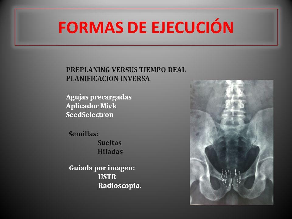 FORMAS DE EJECUCIÓN PREPLANING VERSUS TIEMPO REAL PLANIFICACION INVERSA Agujas precargadas Aplicador Mick SeedSelectron Semillas: Sueltas Hiladas Guia