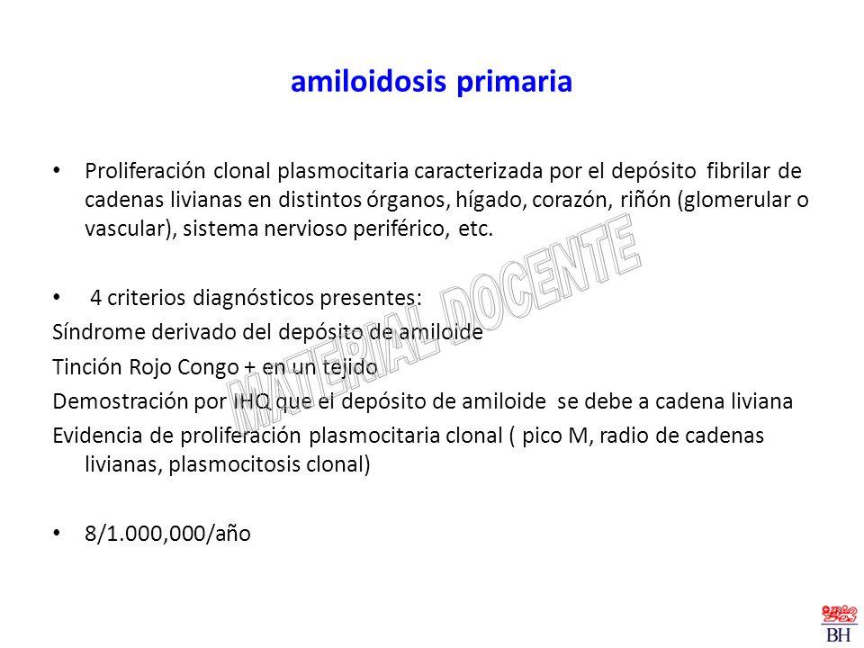 amiloidosis primaria Proliferación clonal plasmocitaria caracterizada por el depósito fibrilar de cadenas livianas en distintos órganos, hígado, coraz