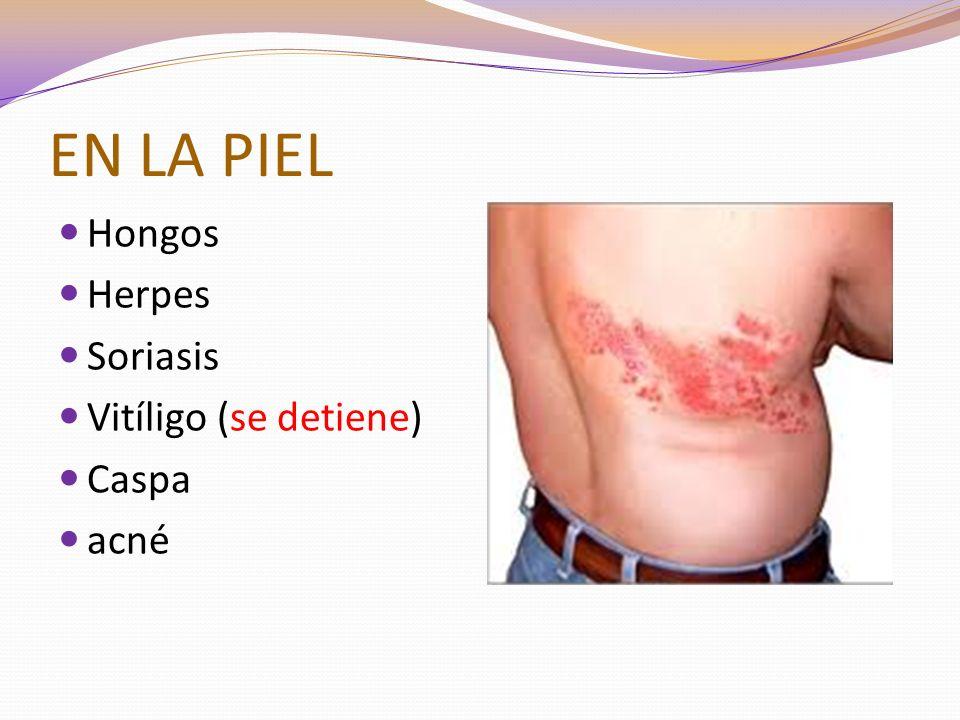EN LA PIEL Hongos Herpes Soriasis Vitíligo (se detiene) Caspa acné