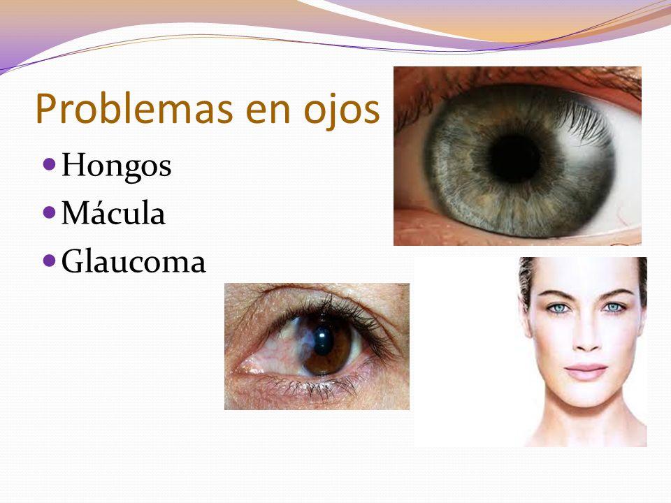 Problemas en ojos Hongos Mácula Glaucoma