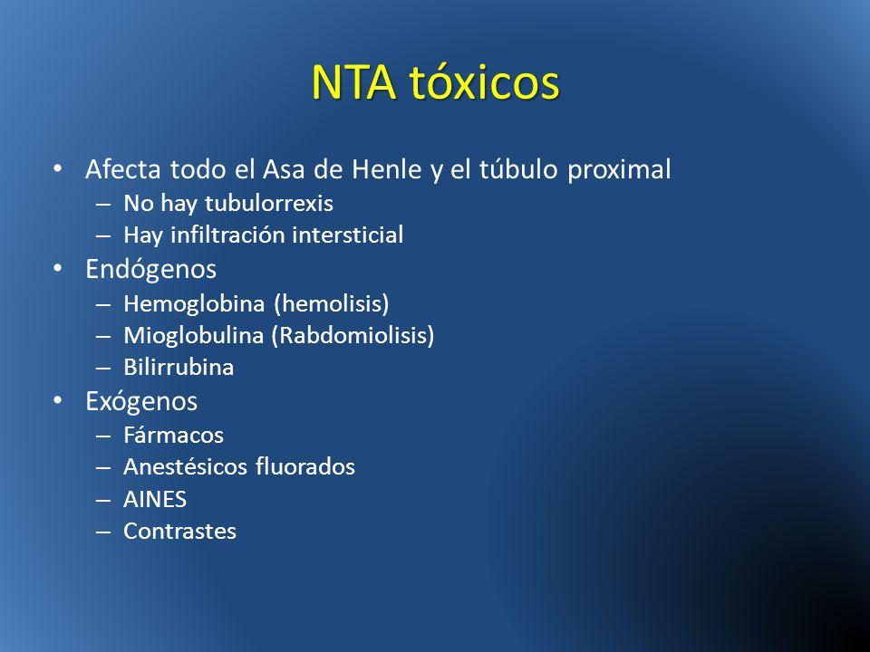 NTA tóxicos Afecta todo el Asa de Henle y el túbulo proximal – No hay tubulorrexis – Hay infiltración intersticial Endógenos – Hemoglobina (hemolisis)
