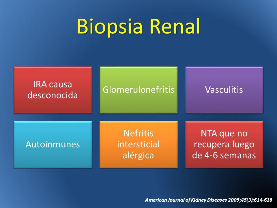 Biopsia Renal IRA causa desconocida GlomerulonefritisVasculitis Autoinmunes Nefritis intersticial alérgica NTA que no recupera luego de 4-6 semanas Am