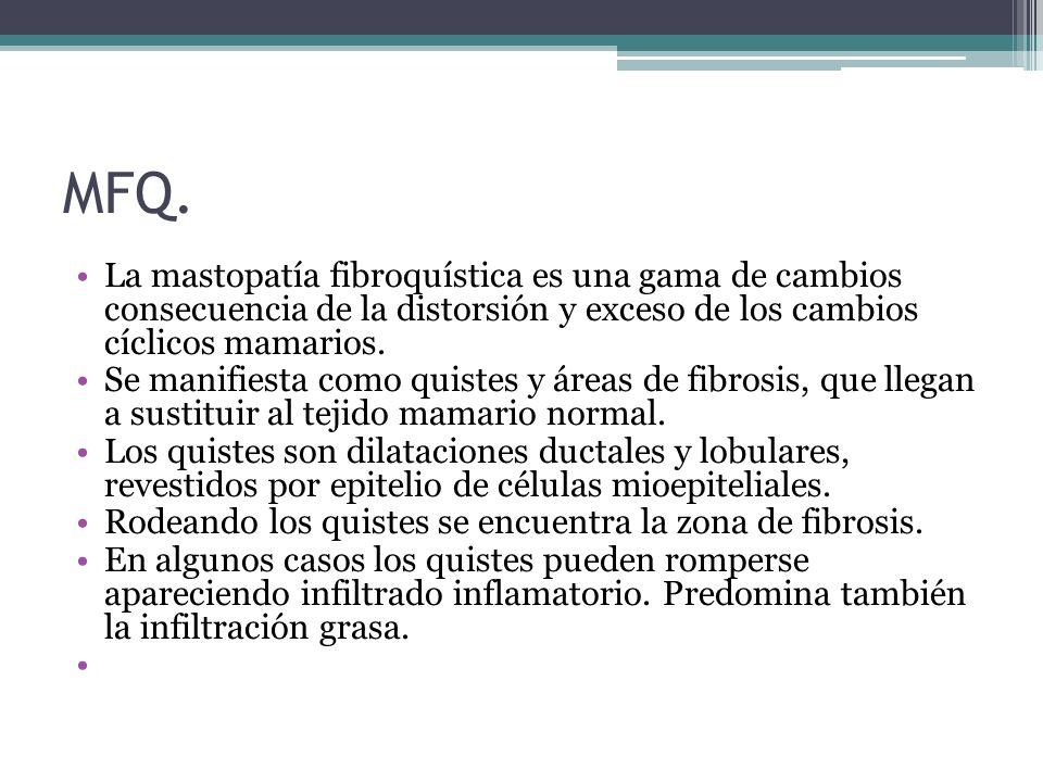MFQ. La mastopatía fibroquística es una gama de cambios consecuencia de la distorsión y exceso de los cambios cíclicos mamarios. Se manifiesta como qu