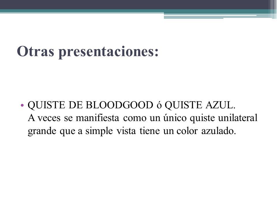 Otras presentaciones: QUISTE DE BLOODGOOD ó QUISTE AZUL. A veces se manifiesta como un único quiste unilateral grande que a simple vista tiene un colo