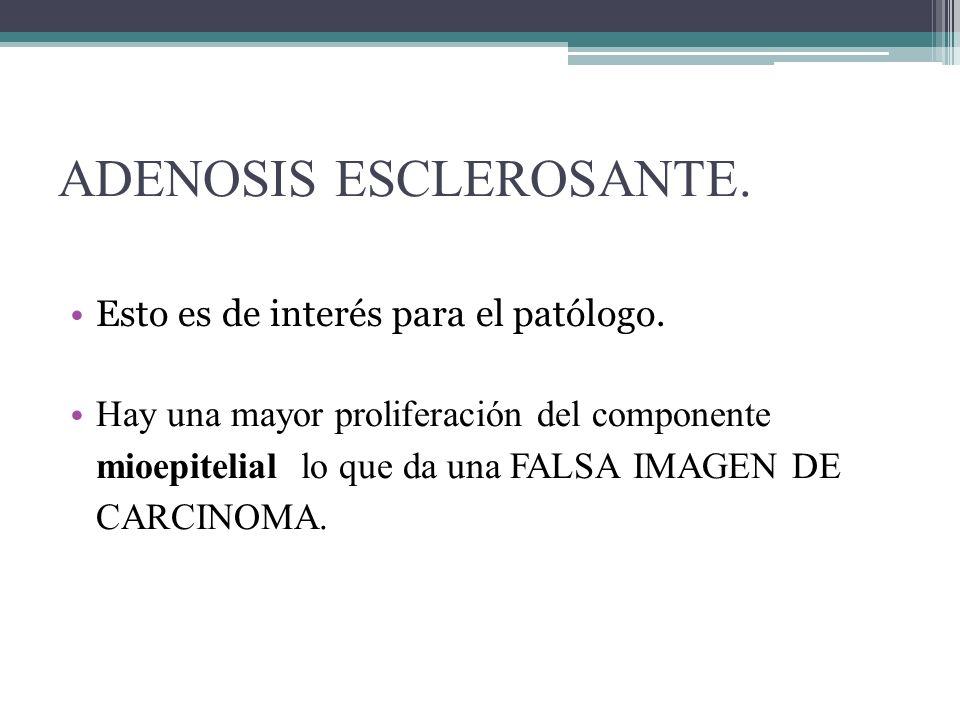 ADENOSIS ESCLEROSANTE.Esto es de interés para el patólogo.