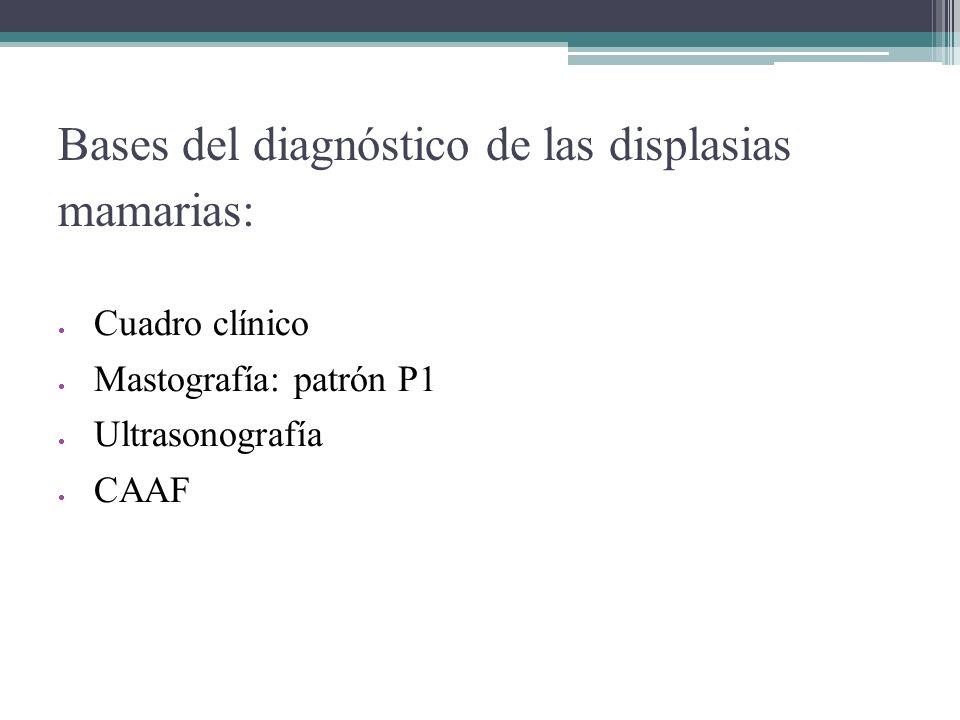 Bases del diagnóstico de las displasias mamarias: Cuadro clínico Mastografía: patrón P1 Ultrasonografía CAAF