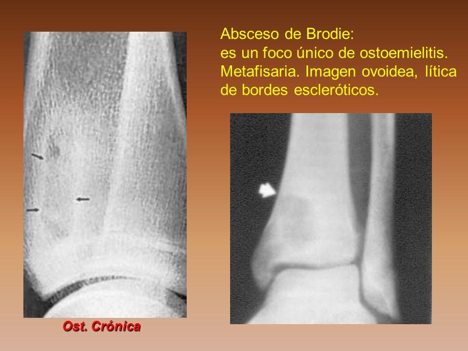 Absceso de Brodie: es un foco único de ostoemielitis. Metafisaria. Imagen ovoidea, lítica de bordes escleróticos. Ost. Crónica